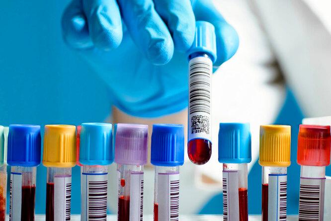Какие гормоны нужно проверить, чтобы неупустить проблемы со здоровьем?