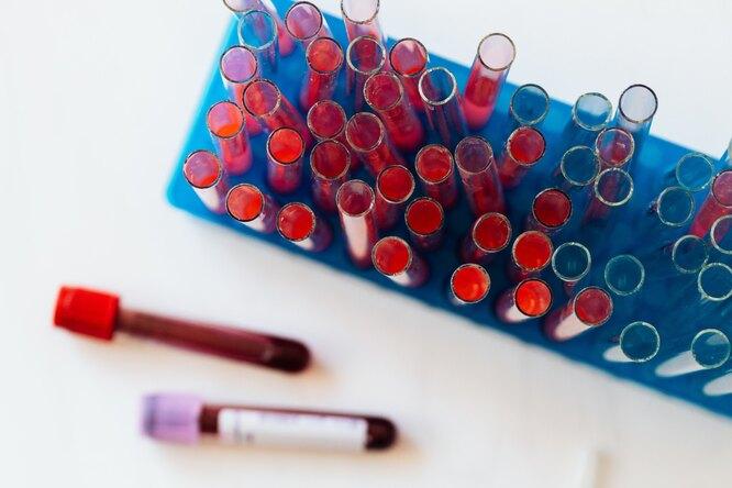 Ученые назвали причину появления тромбов после вакцинации препаратом отAstraZeneca