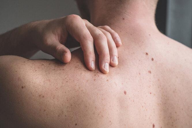 Как определить онкологическое заболевание: 10 главных симптомов