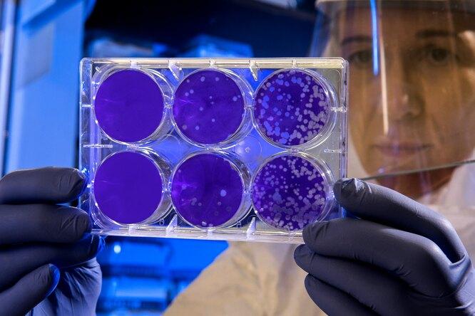 Ученые записали навидео распространение коронавируса поорганизму