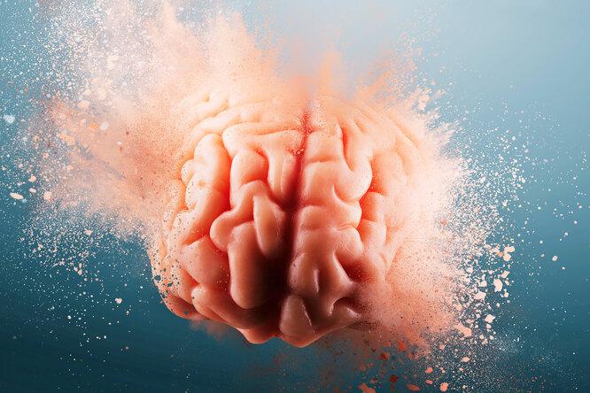 Правда ли, что спиртное убивает клетки мозга