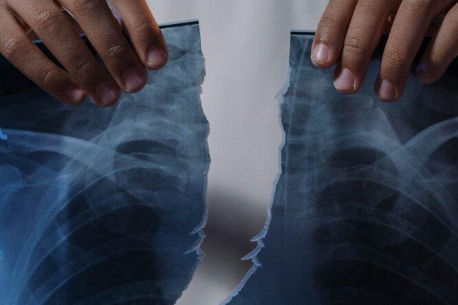 В Великобритании зафиксировали первый вмире случай вертикального перелома пениса