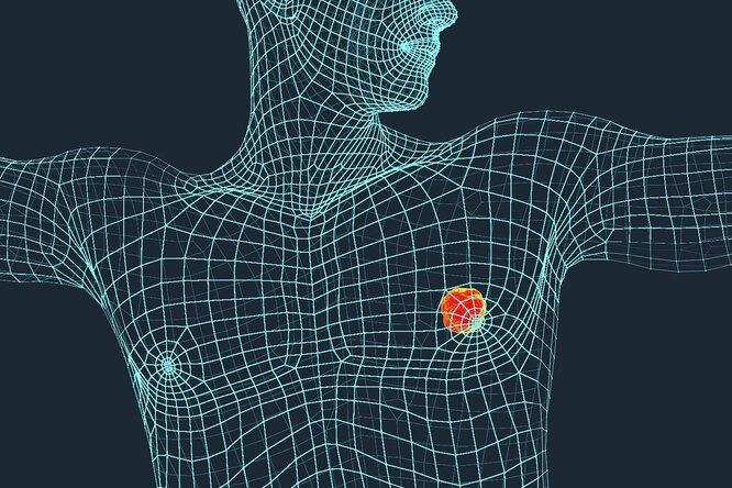 Рак груди умужчин: когда пора обращаться кврачу?