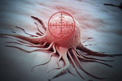 Самые смертоносные онкозаболевания: есть ли возможность их победить самостоятельно?