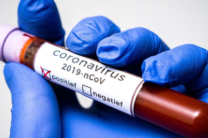 Как долго частицы коронавируса живут наунитазах идверных ручках