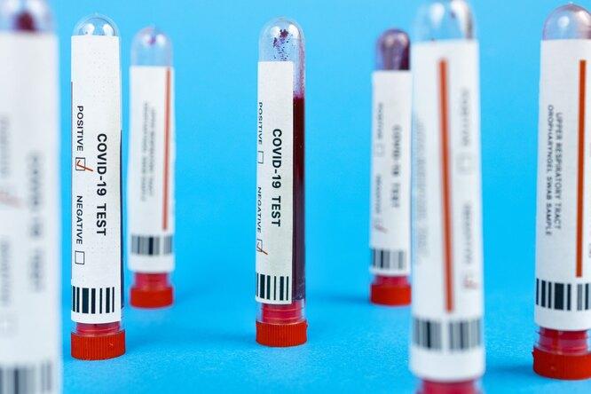 В московских поликлиниках закончились бесплатные ПЦР-тесты