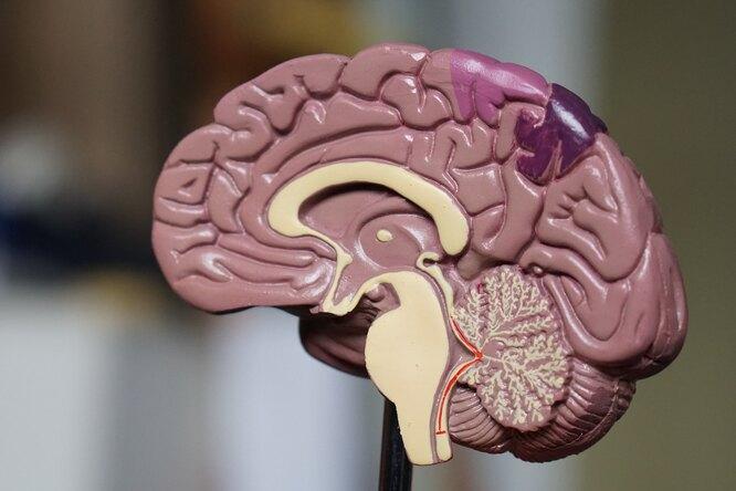 Ученые признали инсульт редким осложнением приCOVID-19